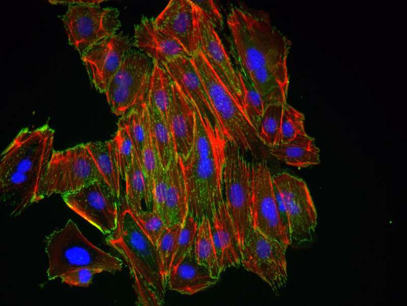 Newly discovered microRNA regulates mobility of tumor cells