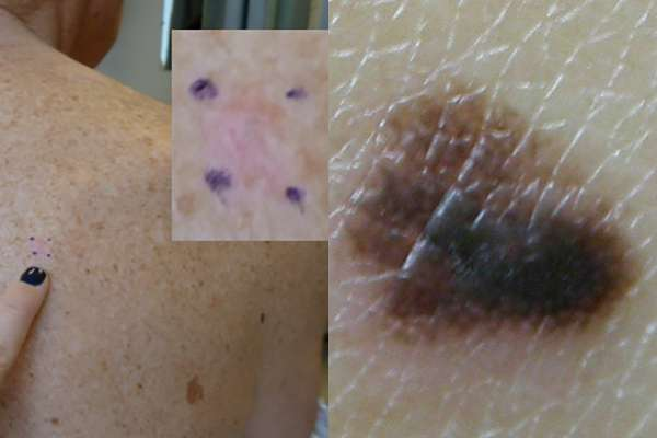 Researchers look to improve detection of skin cancer lacking pigment melanin