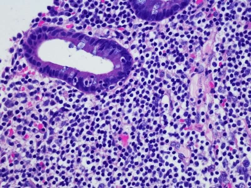 Researchers develop test that can diagnose two cancer types