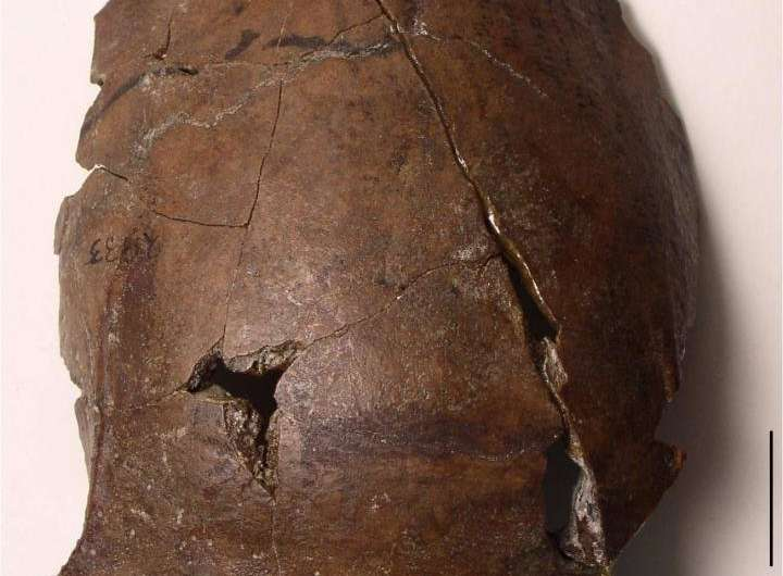 Ancient skull likely to belong to world's oldest tsunami victim