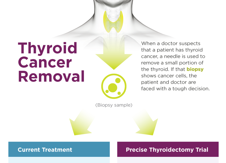 Clinical trial for genetic cancer test to offer safe thyroid-preserving surgery