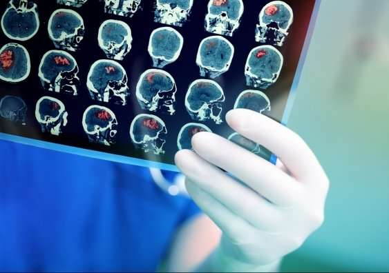New gene therapy developed with UNSW researchers targets brain disorders