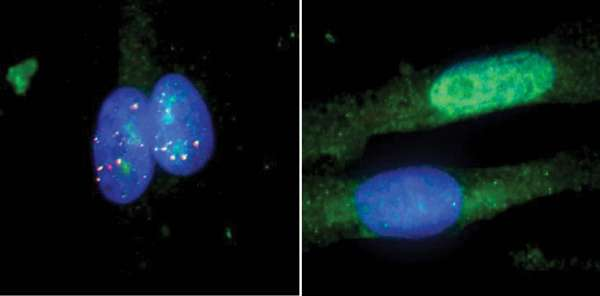 New version of DNA editing system corrects underlying defects in RNA-based diseases