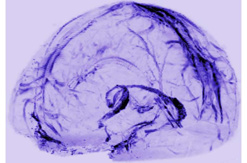 NIH researchers uncover drain pipes in our brains