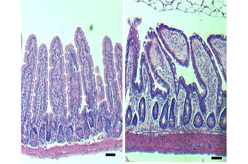Study identifies molecular clues for age-related intestinal issues