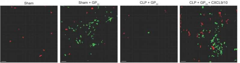 Scientists find potential mechanism for deadly, sepsis-induced secondary infection