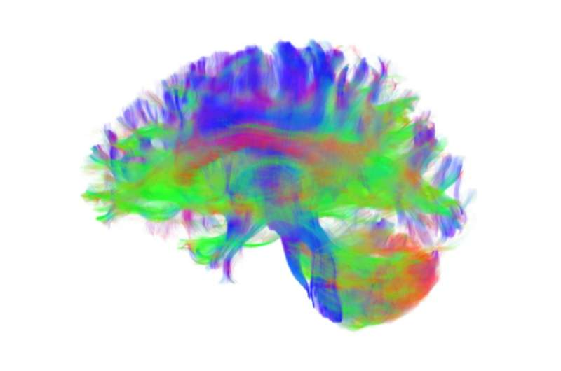 Penn Medicine researchers identify brain network organization changes