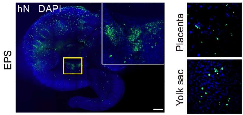 Salk scientists expand ability of stem cells to regrow any tissue type