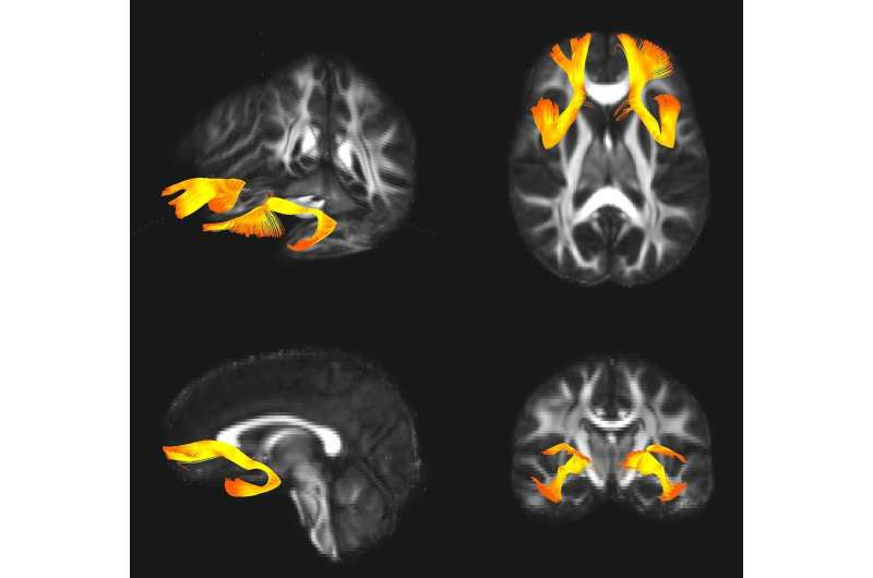 Shared genetics in schizophrenia and bipolar disorder