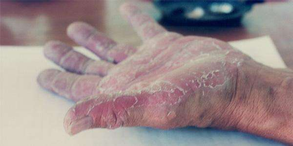 Scientists discover genetic mutation that causes rare skin disease keratolytic winter erythema
