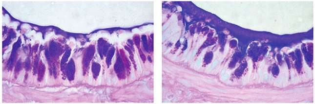 Scientists find gene linked to heightened mucus levels in lung disease