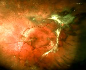 Researchers identify new target for abnormal blood vessel growth in the eyes