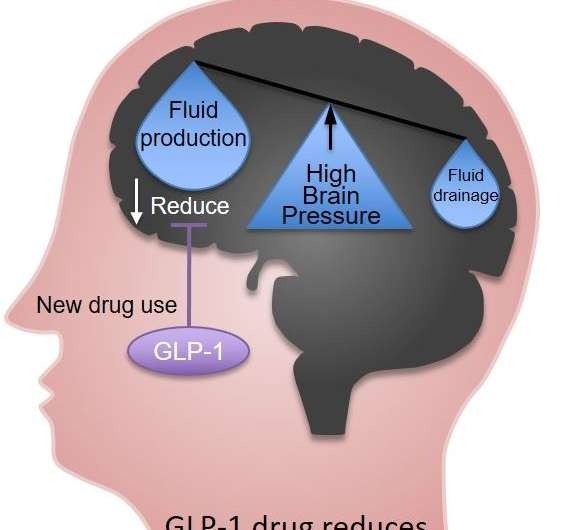 Scientists discover common obesity and diabetes drug reduces rise in brain pressure