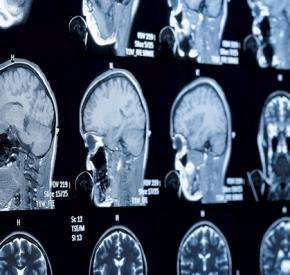 Team examines use of antiparasitic drug as new treatment for brain tumors