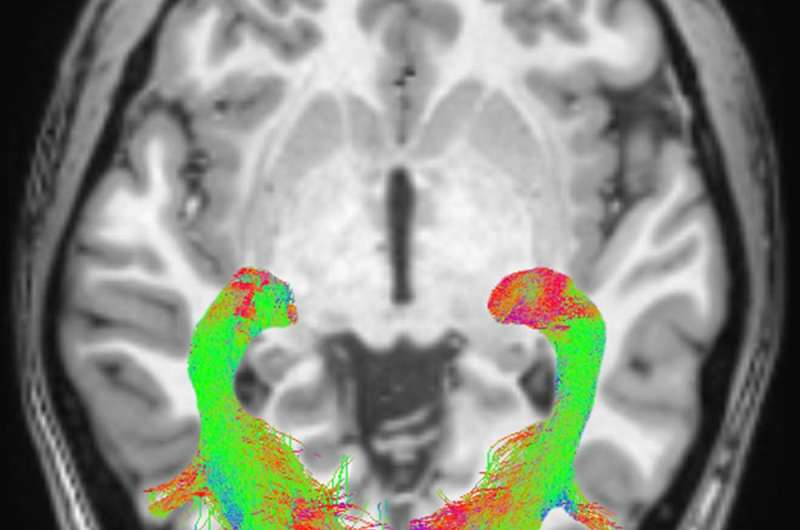 Researchers identify visual system changes that may signal Parkinson's disease