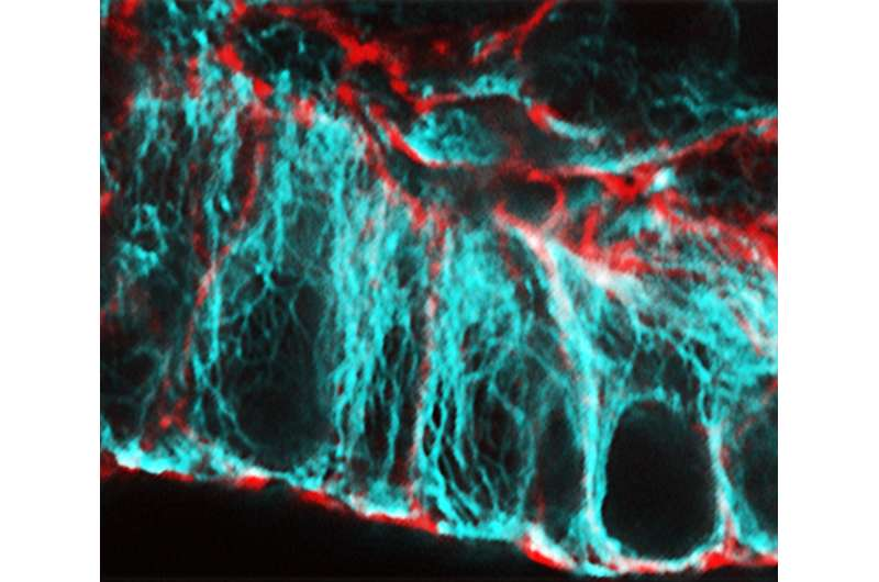 Researchers identify protein essential for healthy gut cell development