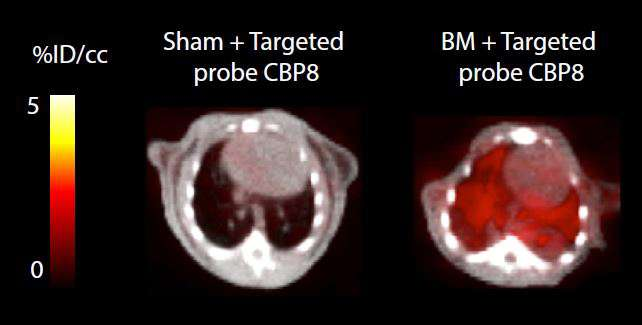 Collagen-targeting PET probe may improve diagnosis and treatment of pulmonary fibrosis