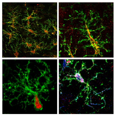 Skin stem cells used to generate new brain cells