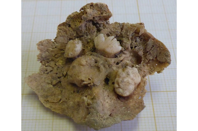 Ovarian teratoma with teeth discovered in remains of 15th century woman