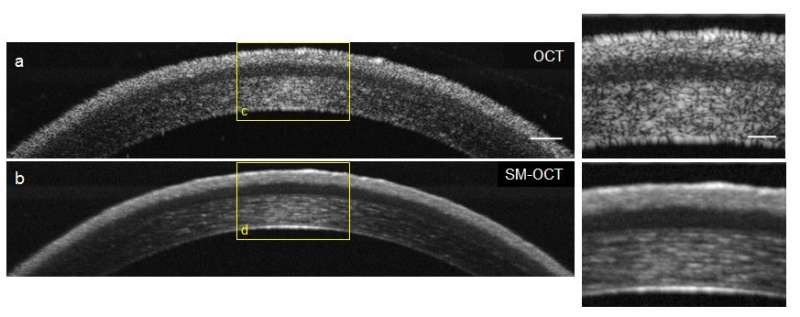 Scientists turbocharge high-resolution, 3-D imaging