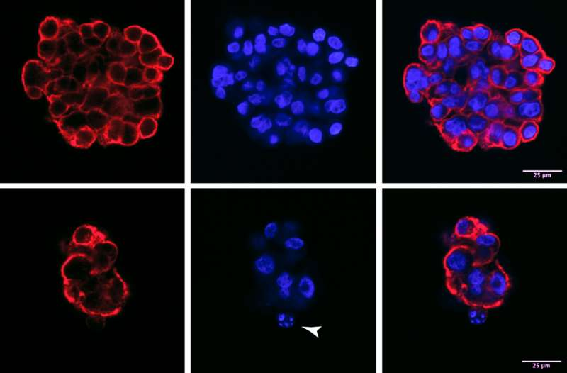 Researchers identify possible new target in fight against lung cancer