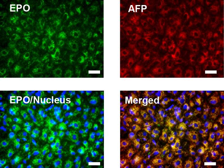 Human stem cells used to cure renal anemia in mice