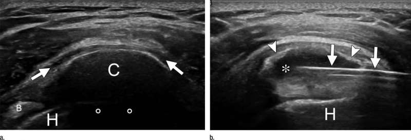 Study looks at needles in treatment for shoulder pain