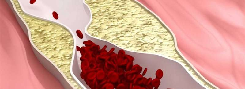 Immune system important in atherosclerosis