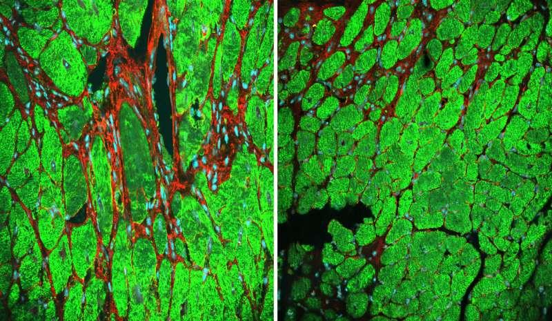Study explores the biology of mending a broken heart