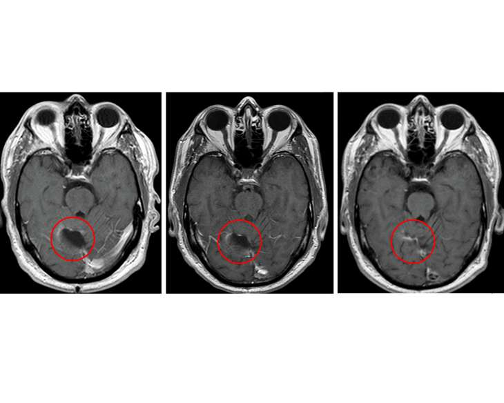 Immunotherapy for glioblastoma well tolerated; survival gains observed