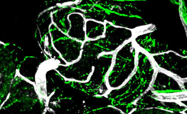 Study shows how nerves drive prostate cancer