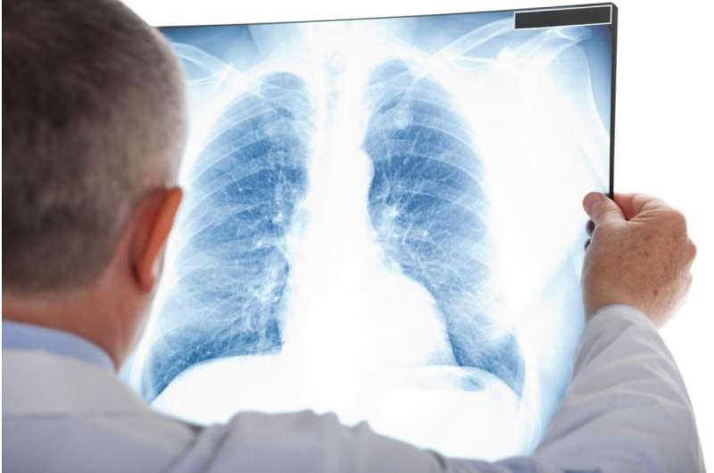 A cough that won't quit—is it lung cancer?