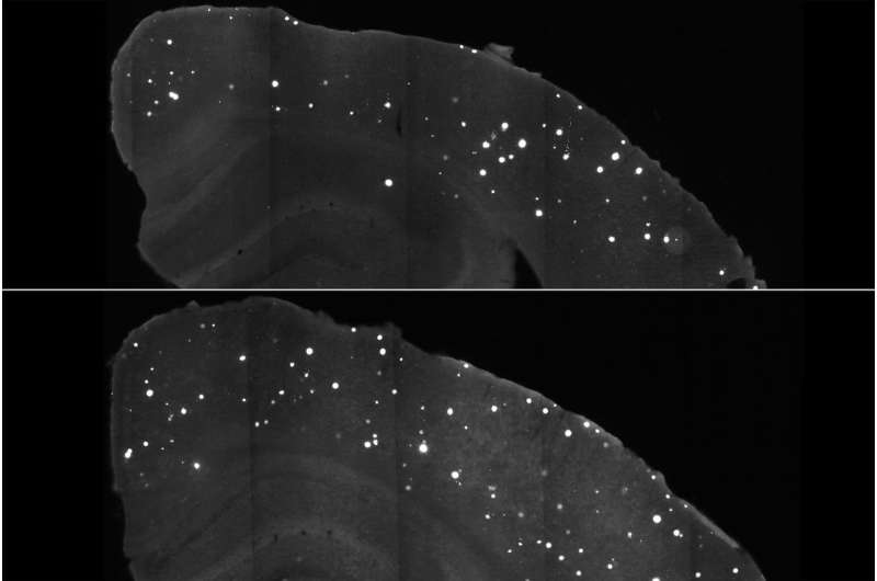 Alzheimer's damage in mice reduced with compound that targets APOE gene