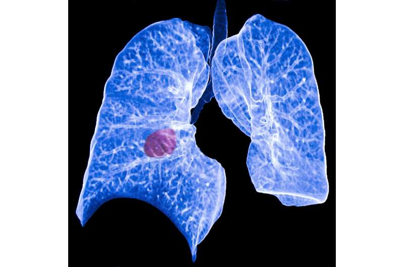 Among all cancers, lung cancer appears to put patients at greatest suicide risk