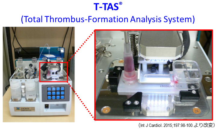 Anticoagulants used for arrhythmia can have different thrombus formation rates
