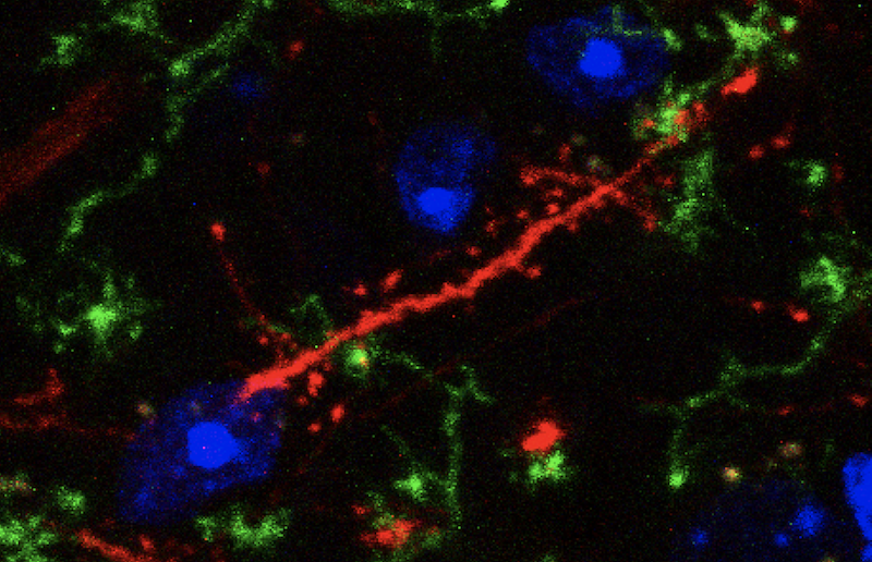 A surprising new link between inflammation and mental illness
