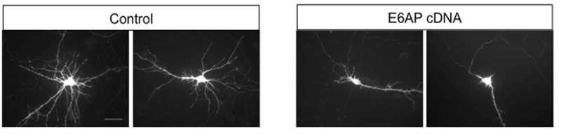 Autism-linked gene stunts developing dendrites