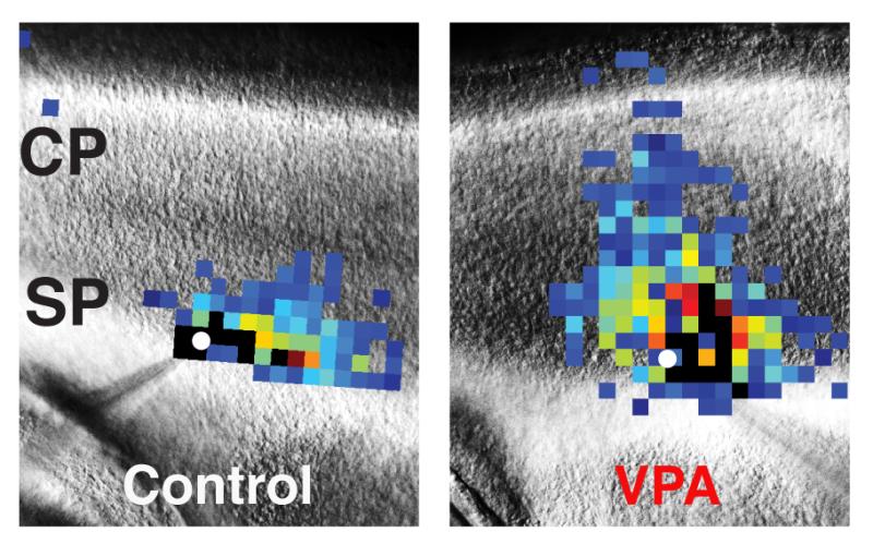 Autism may begin early in brain development