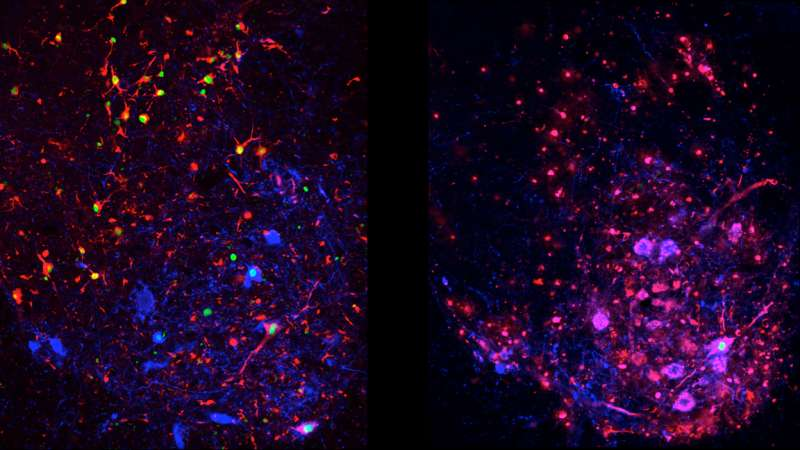 Body's own defense against ALS actually drives disease progression at later stages