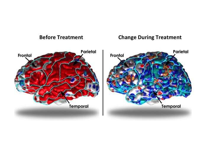 Brain architecture alters to compensate for depression