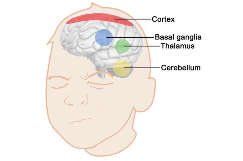 Brain's role in Tourette tics simulated in new computational model