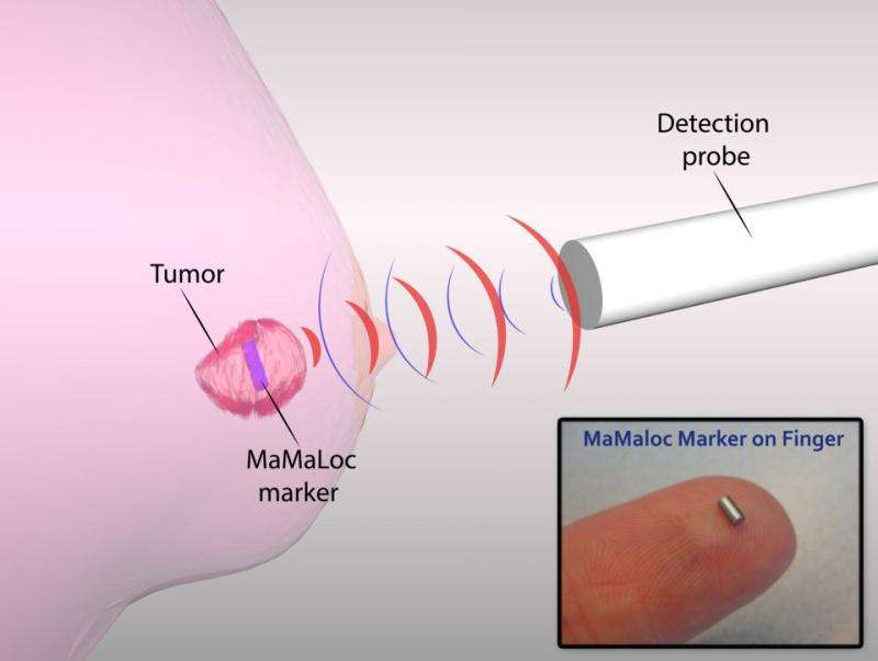 Breast-conserving surgery safer thanks to magnetic MaMaLoc technology