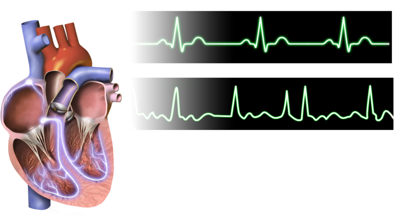 Cause of killer cardiac disease identified by new method