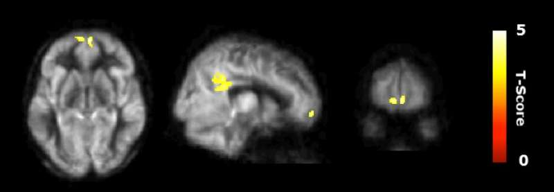Cognitive training enhanced innovative thinking and brain networks in older adults