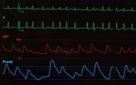 Common irregular heart rate condition along with other chronic illness linked to higher death risk