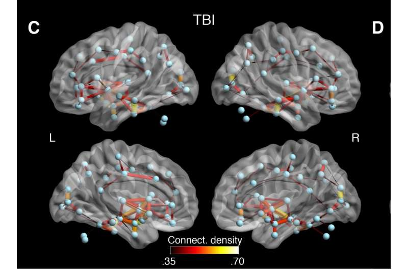 Detecting long-term concussion in athletes