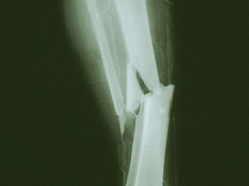 Even low level of physical activity may cut fracture risk