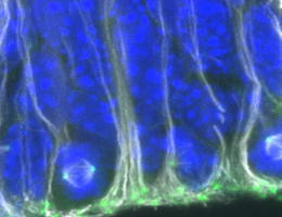 Findings reveal effect of embryonic neural stem cell development on later nerve regeneration capacity
