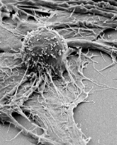 Flaws in a tumor's genetic mending kit drive treatment response to immunotherapy
