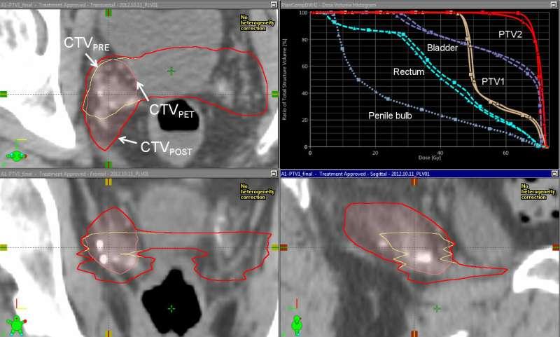 Fluciclovine PET/CT improves radiotherapy targeting for recurrent prostate cancer
